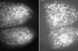Image shows neurons in the SCN.
