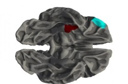 Image shows a brain with the orbitofrontal cortex and medial temporal cortex highlighted.