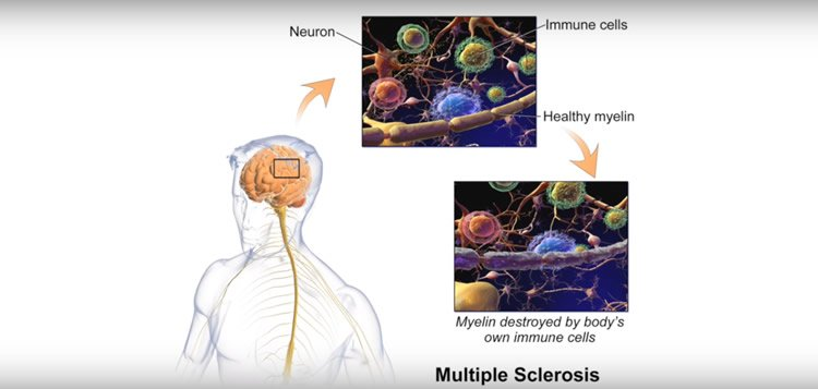 Image shows how myelin is affected in MS.