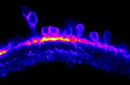 Image shows a neural cells in a zebrafish retina.
