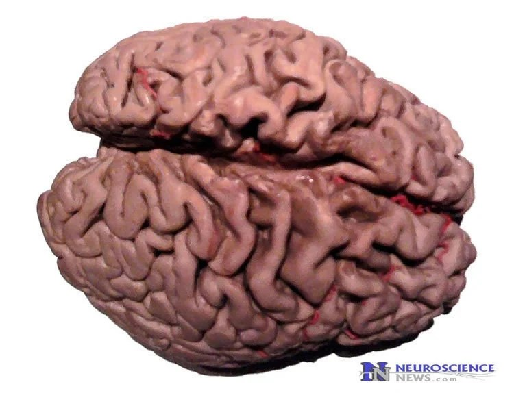 Image shows an alzheimer's brain.