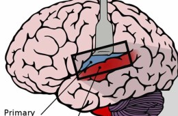 Image shows the location of the auditory cortex in the human brain.
