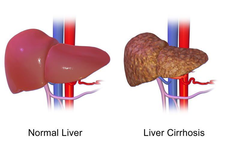 Link Between Brain Inflammation and Gut Bacteria in Chronic Liver Disease