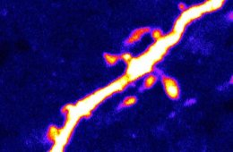 Image shows dendritic spines on a neuron.