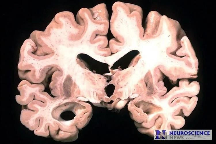 An alzheimer's brain slice.