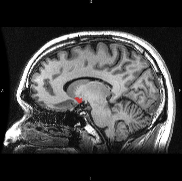 Marijuana Use Dampens Brain's Response to Reward Over Time