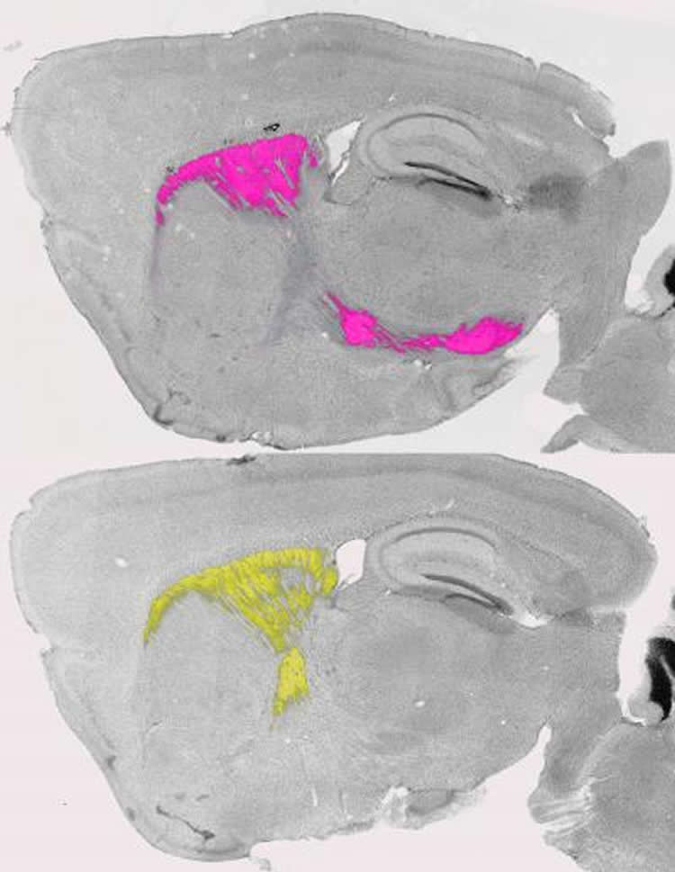 Image shows the basal ganglia of a mouse.