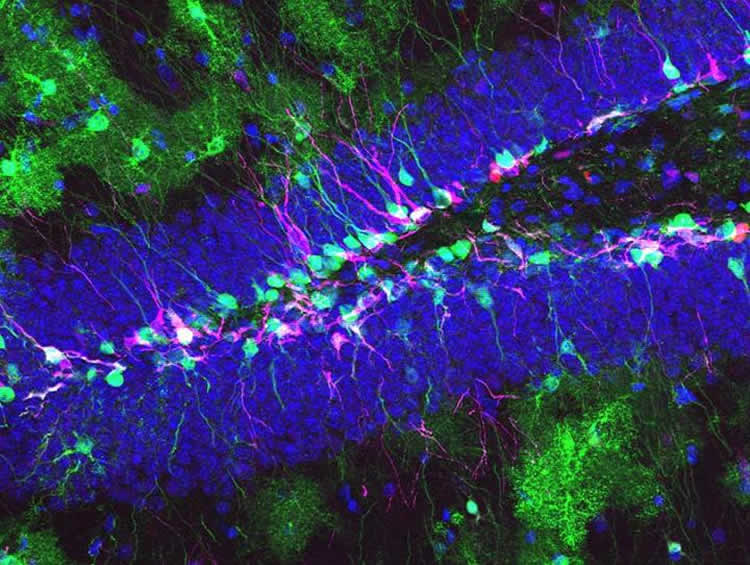 Image shows neural stem cells in the hippocampus.
