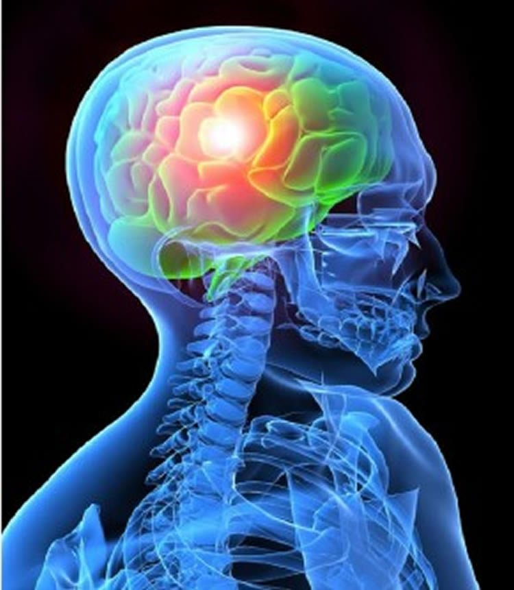 Have quickly adult brain tumors