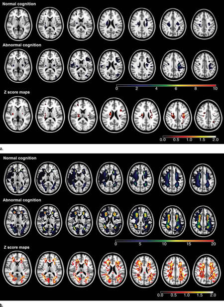 Image shows MRI scans to map ischemic lesions.