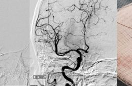Image shows blood flow.