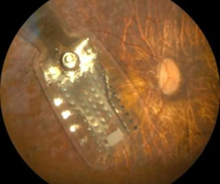Image shows the Argus II Retinal 98 Prosthesis.