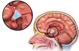 Image shows the location of the hypothalamus.