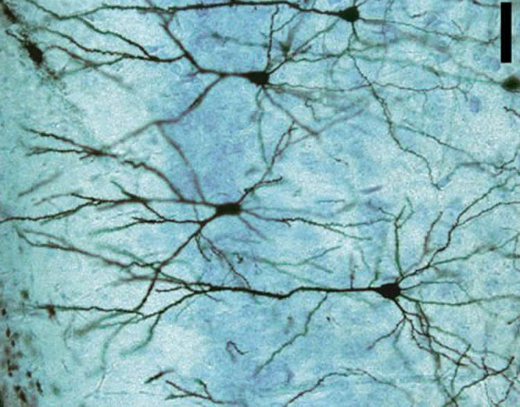 Image shows neuron.