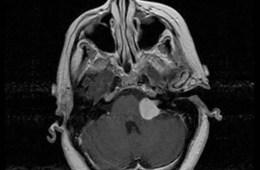Image shows a vestibular schwannoma.
