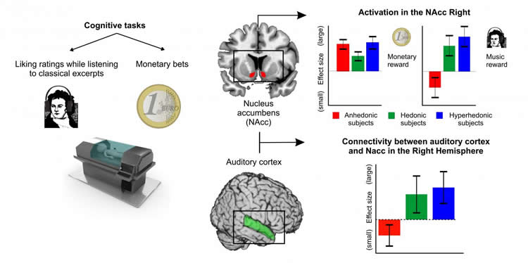 Image shows a diagram which includes images of the brain with the NAcc and auditory cortex highlighted.