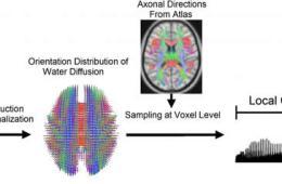Image shows the brain fingerprint computerized view.