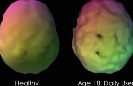 Image shows brain scans of a healthy person and a daily marijuana user, aged 18.