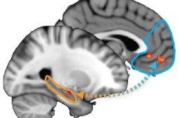 Image shows a split brain with the hippocampus and pfc highlighted.