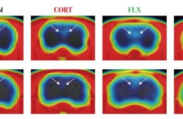 images show decreased neurogenesis in the dentate gyrus.