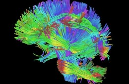 Image shows the white matter rendering from DTI.