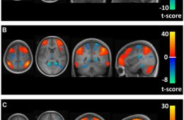 Image shows a brain scans.