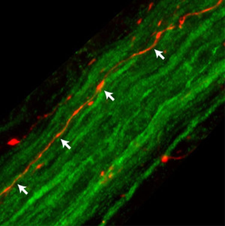 Image shows fibers of the rat vagus nerve.