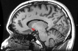 Image shows the location of the nucleus accumbens in the brain.