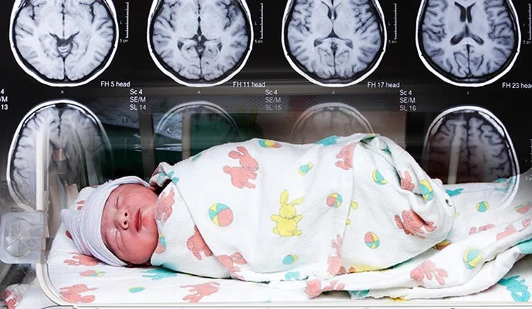 Image shows an incubated baby and brain scans.