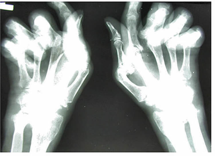 Image shows an X-ray of a person's hand with RA.