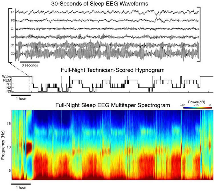 Image shows nthe EEG readouts.