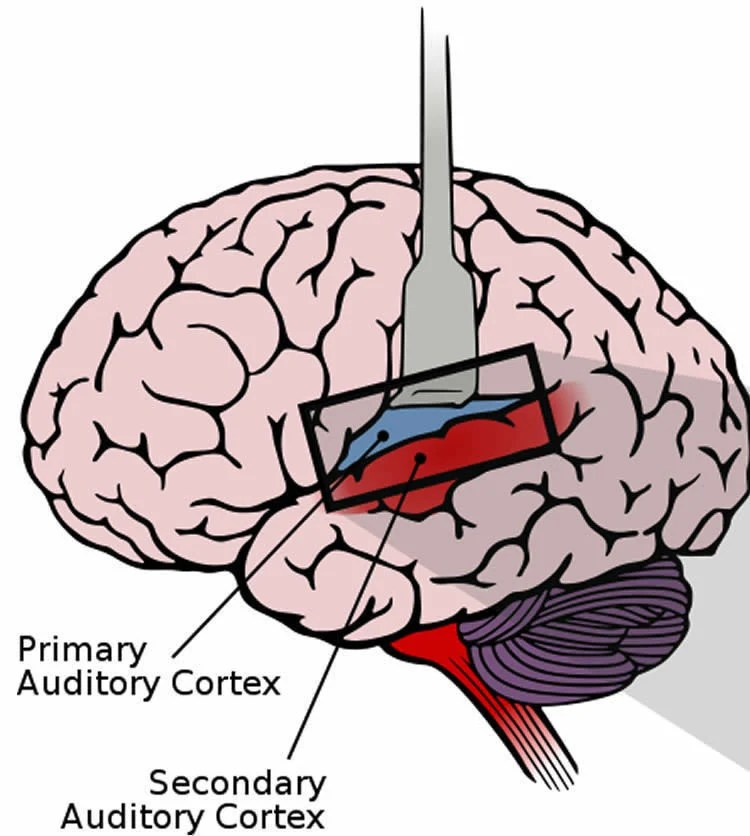 Image shows the location of the auditory cortex in the brain.
