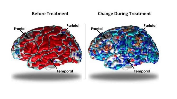 Image shows brain scans of people with depression.