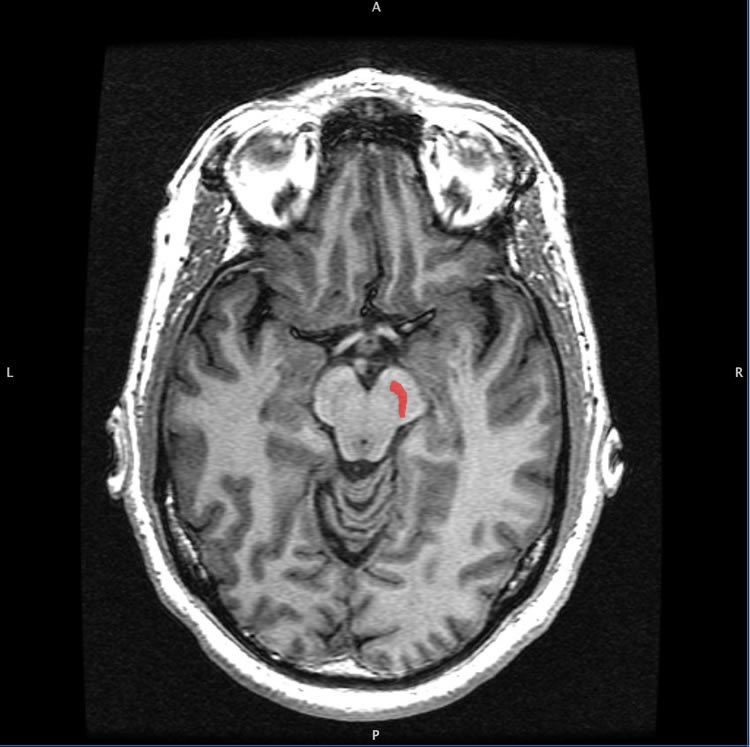 Image shows a the location of the substantia nigra in the brain.