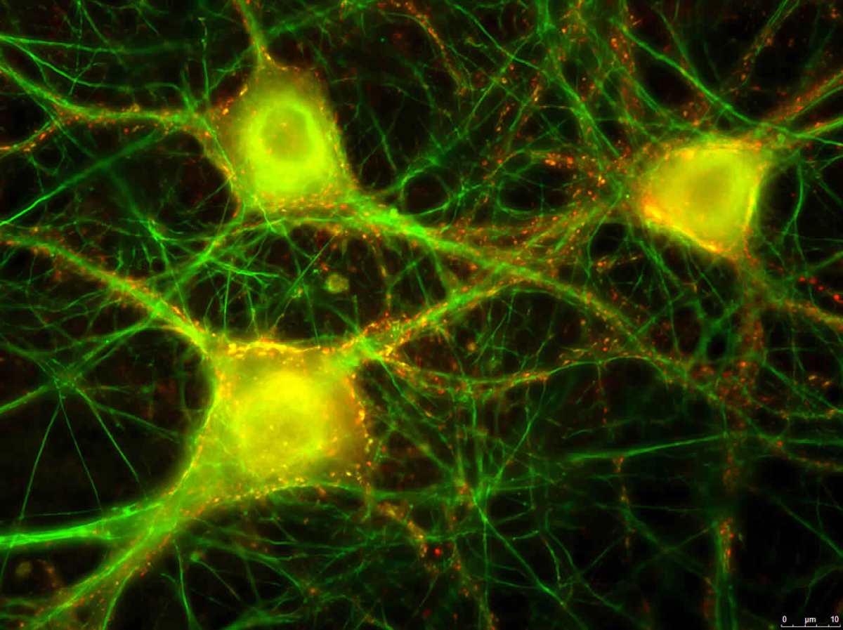 Image shows a neural culture.