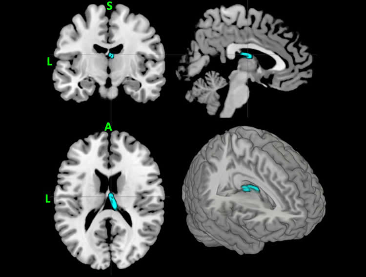 Image shows the location of the thalamus highlighted as associated with depression by machine learning.