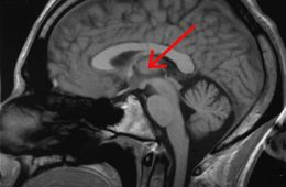 Image shows the location of the thalamus in the human brain.