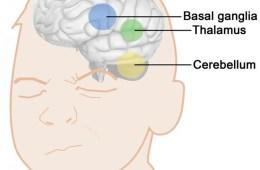 Image shows brain areas associated with tourette tics.