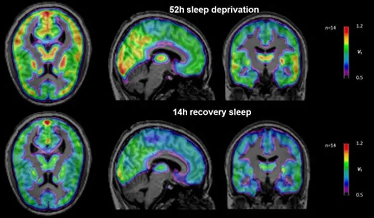 Image shows brain scans from the sleep deprivation study.