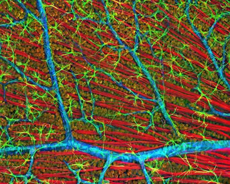 Image shows neurons in a mouse retina.