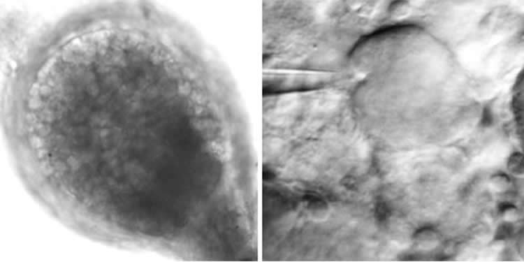 Image shows the mini brain cells.