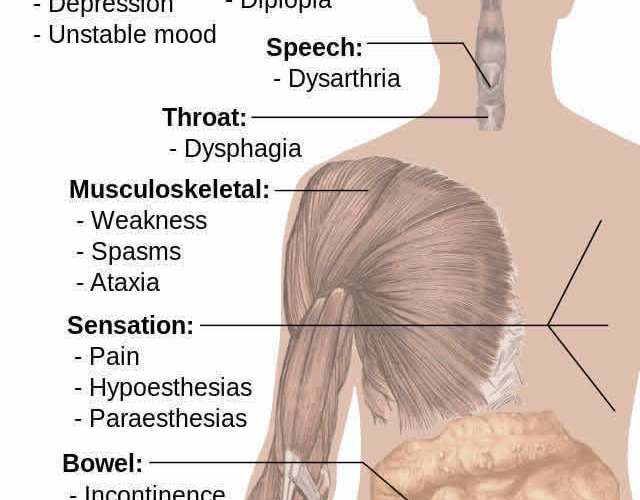 Image shows a diagram of how ms affects thge body.
