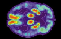 Image shows a PET scan of an Alzheimer's brain.