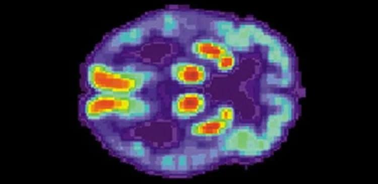 Image shows a PET scan of an Alzheimer's brain.