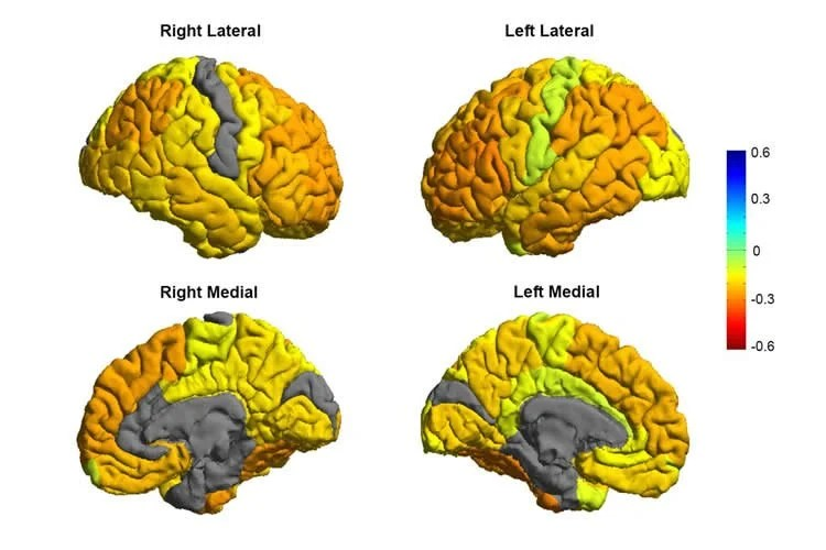 Researchers Create a Roadmap of Bipolar Disorder and How It Affects the Brain