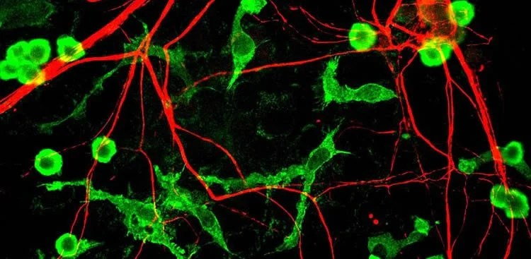 Image shows microglia and neurons.