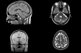 Image shows brain scans.