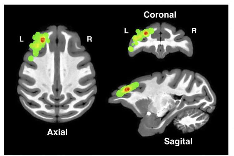 Image shows a brain scans with the dlPFC highlighted.