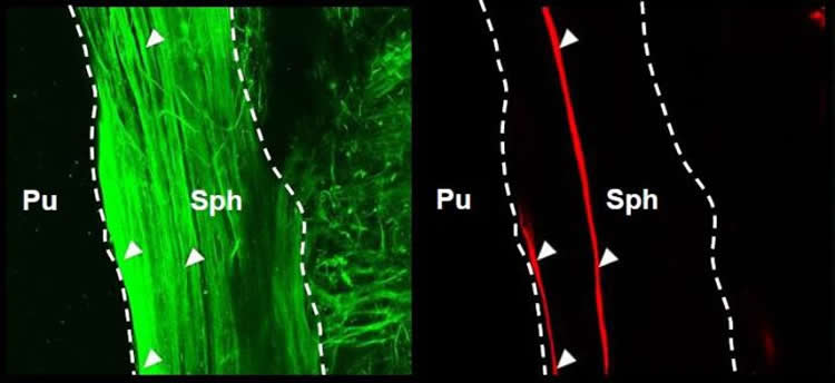 Image shows sphincter muscle fibers.