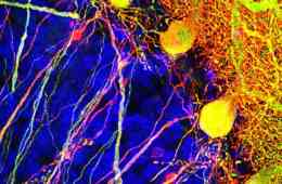 Image shows purkinje cells.